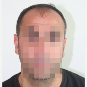 45-54 year old man treated with FUE Hair Transplant before 3210923