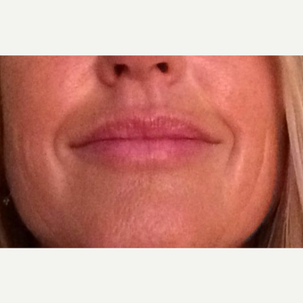 35-44 year old woman treated with Lip Augmentation after 3460114