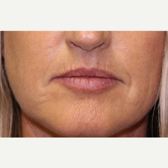 35-44 year old woman treated with Lip Augmentation before 3460114