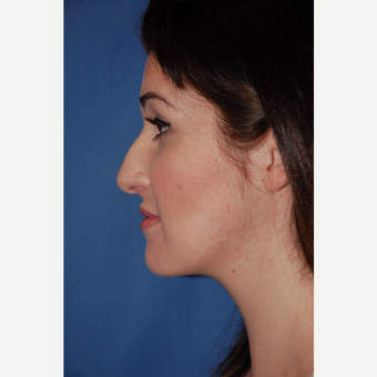25-34 year old woman treated with Rhinoplasty before 3288894
