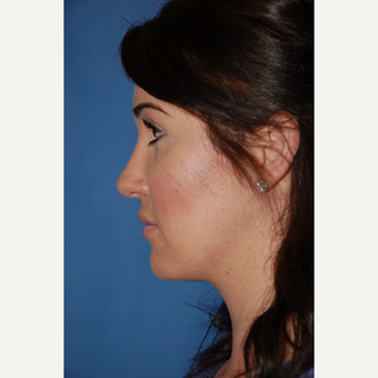 25-34 year old woman treated with Rhinoplasty after 3288894
