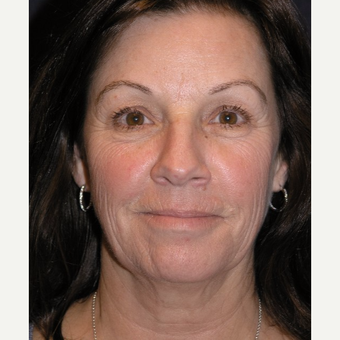 55-64 year old woman treated with Facelift before 3466656