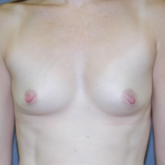 37 year old woman treated with Breast Augmentation before 3042690