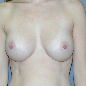 37 year old woman treated with Breast Augmentation after 3042690