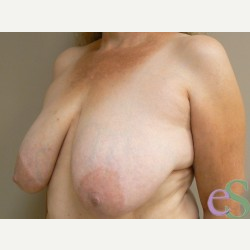 Breast Reduction before 3373602