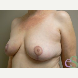 Breast Reduction after 3373602
