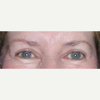 55-64 year old woman before direct lateral Brow Lift and Blepharoplasty