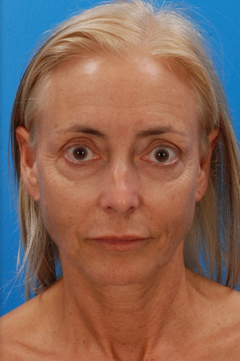 Laser Resurfacing Before & After before 1127274