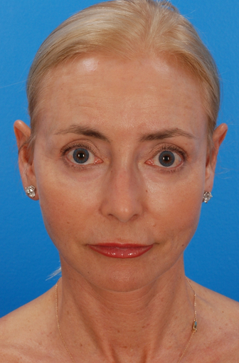 Laser Resurfacing Before & After after 1127274