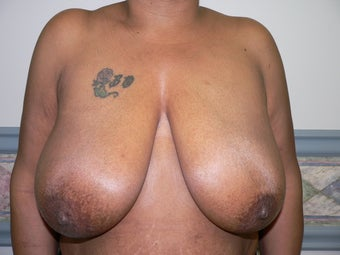 Ultimate Breast Lift with no implants before 359421