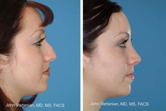 25-34 year old woman treated with Rhinoplasty after 3810049