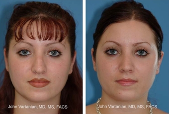 25-34 year old woman treated with Rhinoplasty before 3810049