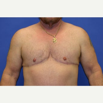 61 year old man treated with FTM Chest Masculinization Surgery after 1919018