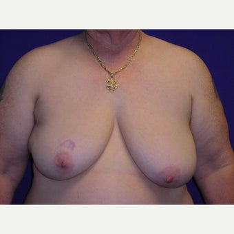 61 year old man treated with FTM Chest Masculinization Surgery before 1919018