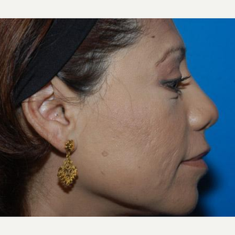 Rhinoplasty after 3241553