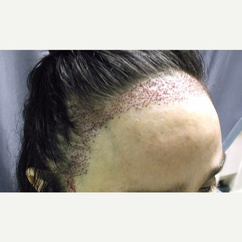 45-54 year old woman treated with Forehead Reduction before 1973884