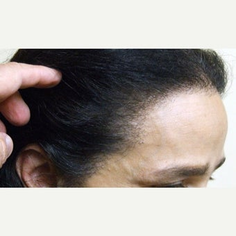 45-54 year old woman treated with Forehead Reduction after 1973884