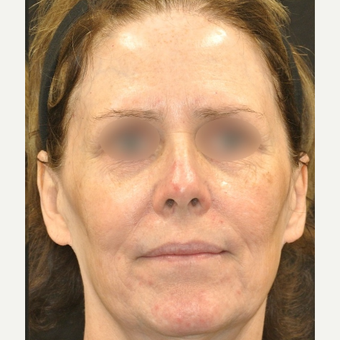 56 year old woman treated with Tight and Bright Rejuvenation