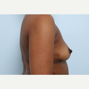 Breast Augmentation before 3460049