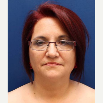 57 year old female, SMAS plication facelift before 3814716