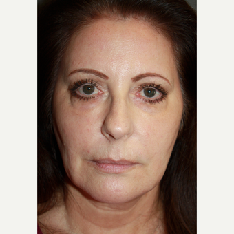 Chemical Peel after 2293693