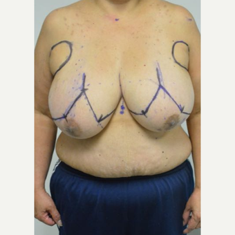 55-64 year old woman treated with Breast Reduction and liposuction of the axilla before 3383008