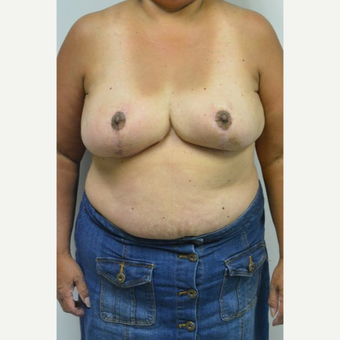 55-64 year old woman treated with Breast Reduction and liposuction of the axilla after 3383008