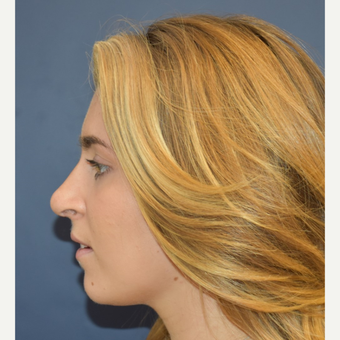 18-24 year old woman treated with Rhinoplasty after 3251915