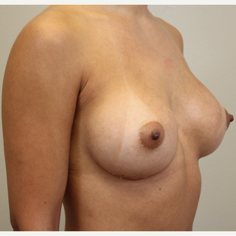 27 year old woman treated with Breast Augmentation after 3689592