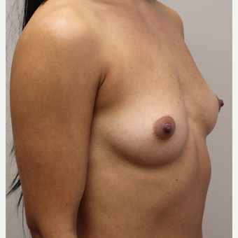 27 year old woman treated with Breast Augmentation before 3689592