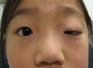 Ptosis surgery, asian eyelid surgery before 875940