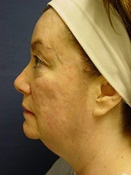 45-54 year old woman treated with Non-Surgical Neck Lift before 2588692