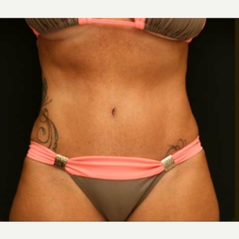 Abdominoplasty with lipo of abdomen, flanks and low back after 3529207