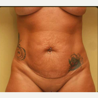 Abdominoplasty with lipo of abdomen, flanks and low back before 3529207