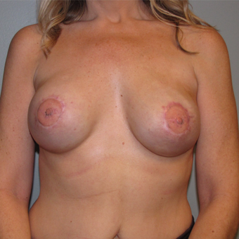 45-54 Latissimus Dorsi w/ Implant Reconstruction after 3004087