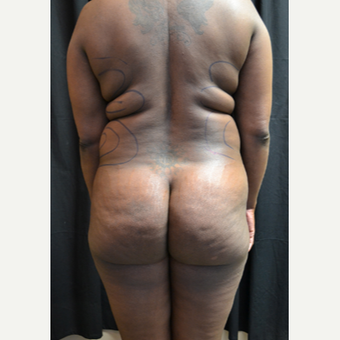 Woman treated with Smart Lipo before 2018708