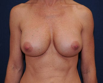 Breast Implant revision  after 692769