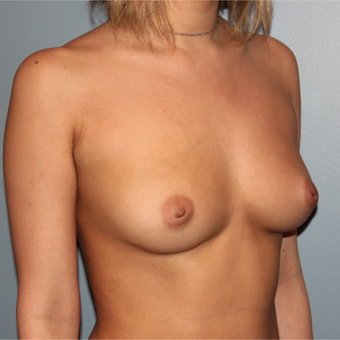 28 year old had breast augmentation with 295 cc silicone breast implants before 3467458
