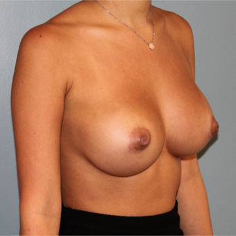 28 year old had breast augmentation with 295 cc silicone breast implants after 3467458