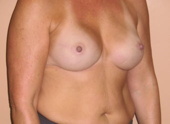 45-54 year old woman treated with Breast Reconstruction 3041294