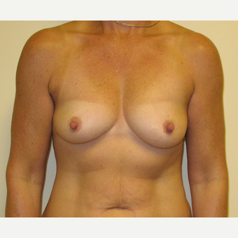 45-54 year old woman treated with Breast Reconstruction before 3041294