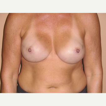 45-54 year old woman treated with Breast Reconstruction after 3041294