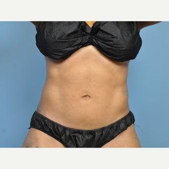 25-34 year old woman treated with Liposuction after 1576084