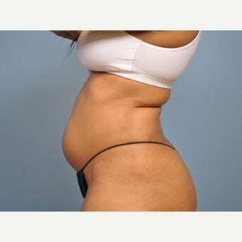 25-34 year old woman treated with Liposuction 1576084