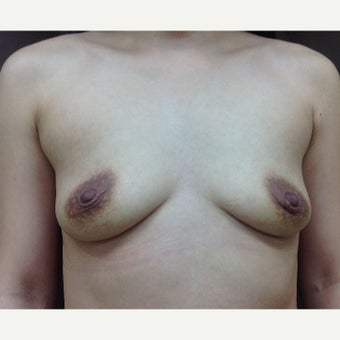 25-34 year old woman treated with Breast Fat Transfer before 1804660