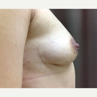 25-34 year old woman treated with Breast Fat Transfer 1804660
