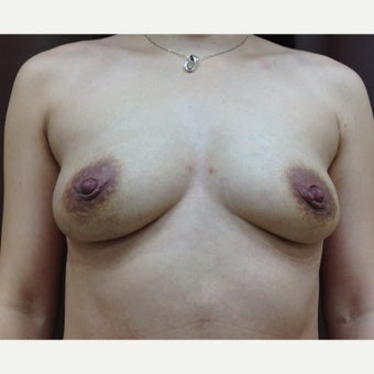 25-34 year old woman treated with Breast Fat Transfer after 1804660