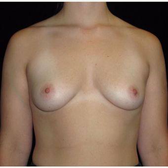 26 year old woman treated with Breast Augmentation before 3802764