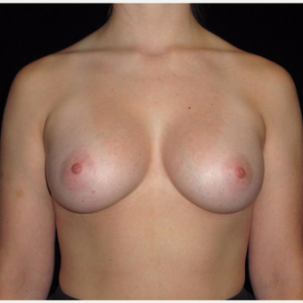 26 year old woman treated with Breast Augmentation after 3802764
