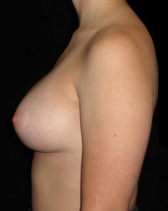 26 year old woman treated with Breast Augmentation 3802764
